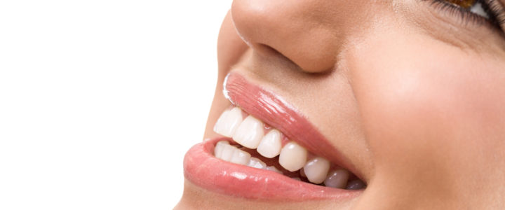 Professional Teeth Whitening in Garland